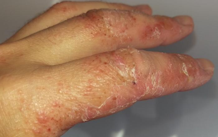 zoimbie fingers